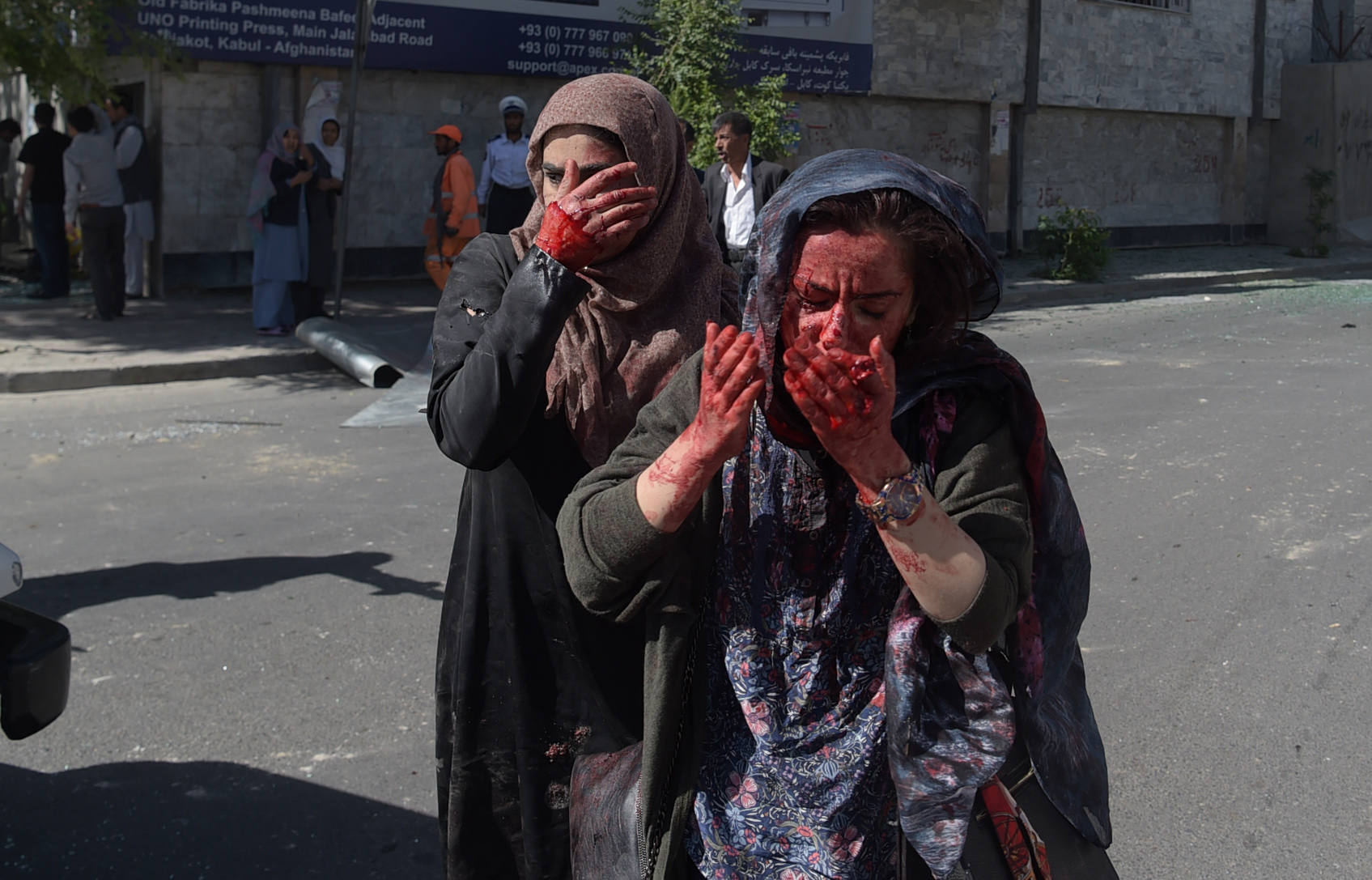 Wounded women gesture at the site of a car bombing in Kabul last May 31. A massive blast rocked Kabul's diplomatic quarter during the morning rush hour that day, killing 150 people. [Shah Marai/AFP]