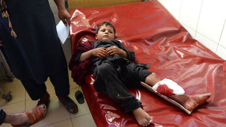 A wounded boy receives treatment at a hospital following multiple suicide attacks in Nangarhar September 11. [NOORULLAH SHIRZADA AFP]