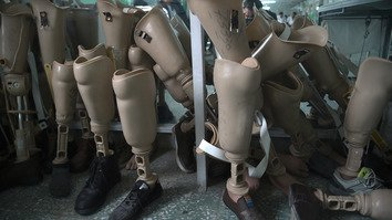Artificial limbs stored in a hospital run by the International Committee of the Red Cross (ICRC) for war victims and the disabled in Kabul are shown last February 13. [SHAH MARAI/AFP]